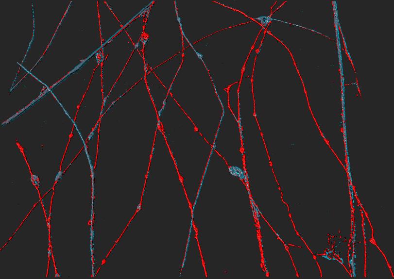 Axonal regeneration