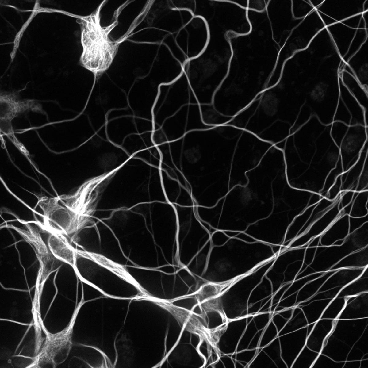 neurons 25mm_RGB